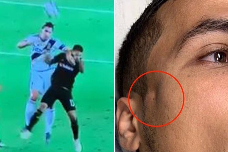 ibrahimovic rompe la faccia